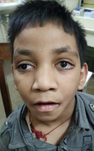 Aarav is a young body who is mentally and physically disabled